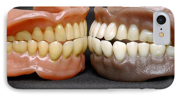 Two Sets Of Dentures Phone Case by Medicimage