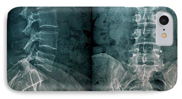 Untreated Fractured Vertebra IPhone Case