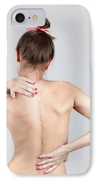 Woman With Back Pain IPhone Case