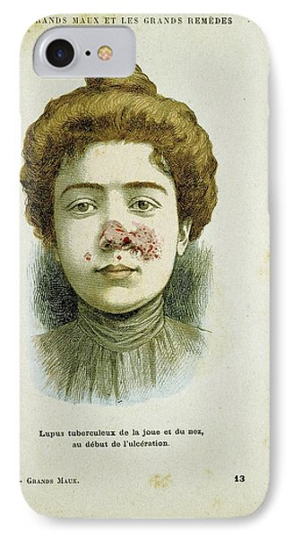 Woman With Lupus Vulgaris IPhone Case by Universal History Archive/uig