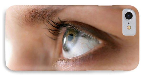 Woman's Eye IPhone Case