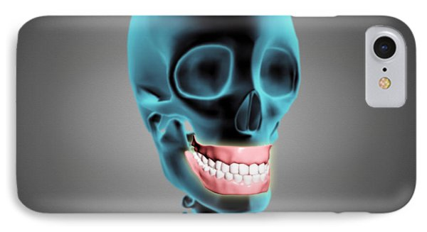 X-ray View Of Human Skeleton Showing Phone Case by Stocktrek Images