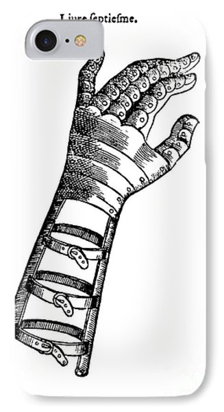 Artificial Hand Designed By Ambroise IPhone Case by Science Source