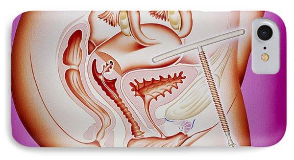 Artwork Of An Intrauterine Device In The Uterus Phone Case by John Bavosi