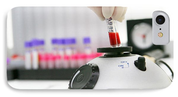 Blood Sample Testing Phone Case by Ria Novosti