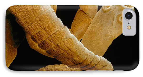 Coloured Sem Of A Tapeworm, Taenia Sp. Phone Case by Power And Syred