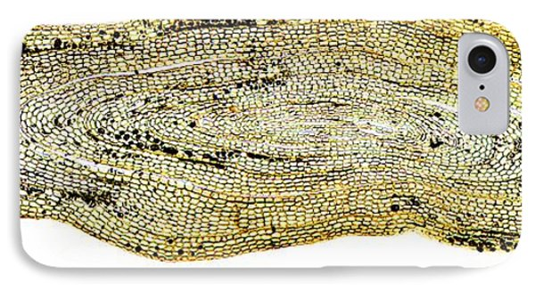 Eel Scale, Light Micrograph Phone Case by Dr Keith Wheeler