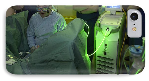 Endoscopic Prostate Surgery IPhone Case