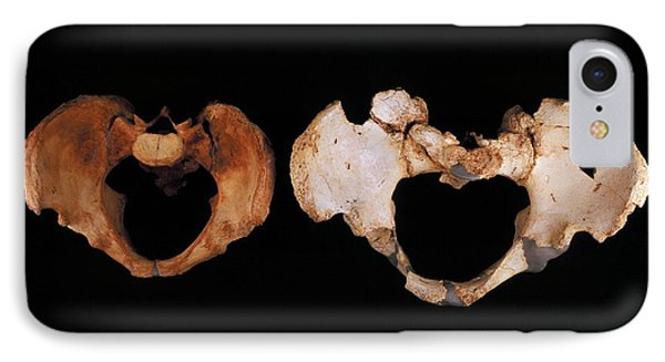 Fossilised Pelvis, Sima De Los Huesos IPhone Case