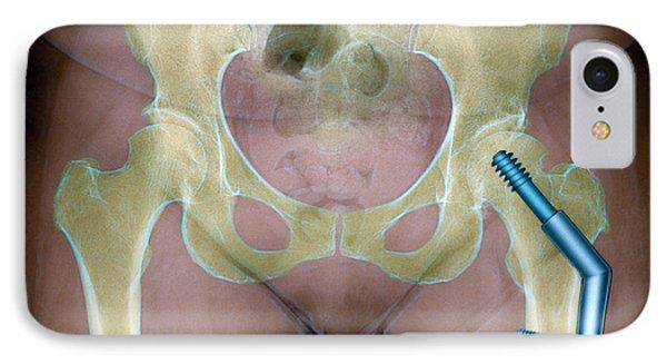 Fractured Femur Phone Case by Du Cane Medical Imaging Ltd
