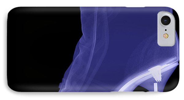 High Heel Boot X-ray Phone Case by Ted Kinsman