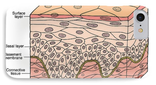 Illustration Of Stratified Squamous Phone Case by Science Source