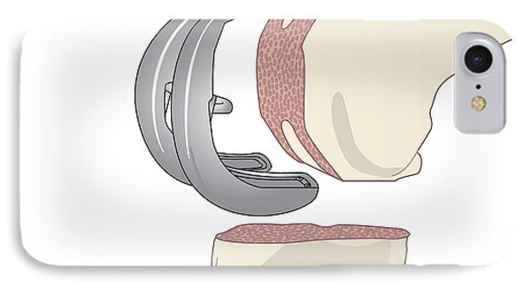 Knee Replacement, Artwork IPhone Case
