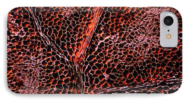 Leaf Anatomy, Light Micrograph Phone Case by Dr Keith Wheeler