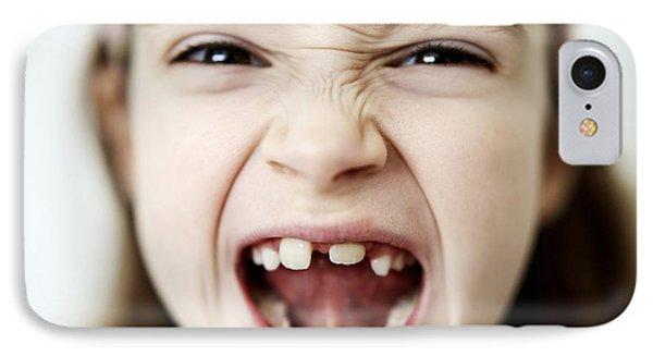 Loss Of Milk Teeth IPhone Case by Ian Boddy