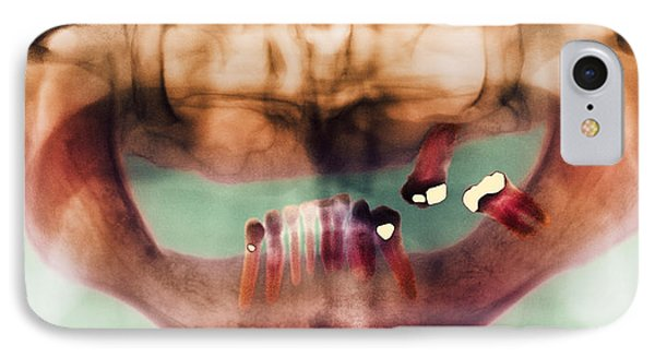 Loss Of Teeth, X-ray Phone Case by
