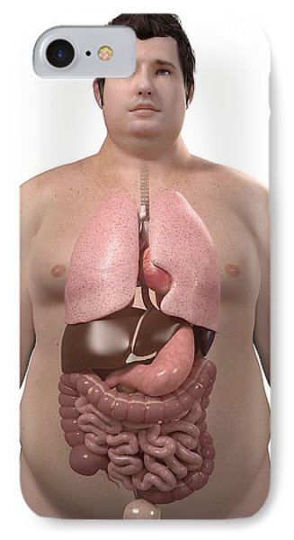 Obese Man's Organs, Artwork Phone Case by Sciepro