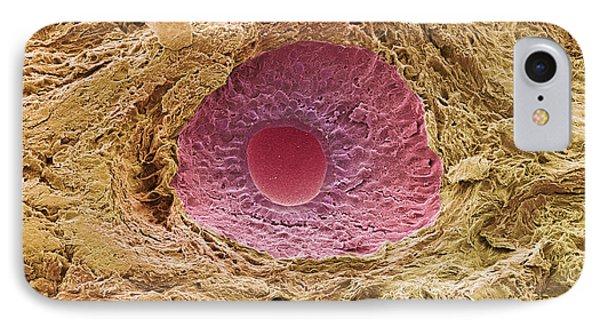 Ovarian Follicle, Sem Phone Case by Steve Gschmeissner
