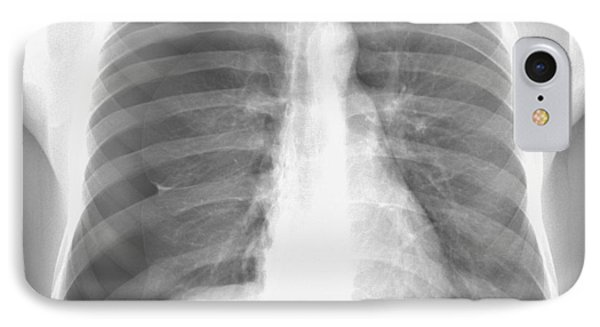 Pneumothorax, X-ray Phone Case by Du Cane Medical Imaging Ltd