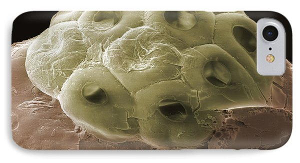 Sem Of A Head Lice Eggs Phone Case by Ted Kinsman