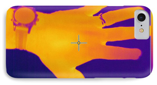 Thermogram Of A Hand Phone Case by Ted Kinsman