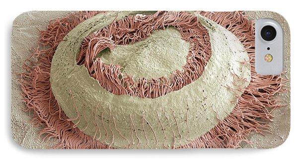 Trichodina Parasite, Sem Phone Case by Steve Gschmeissner