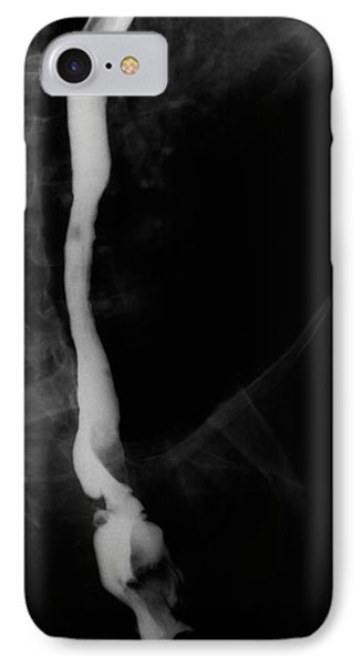 Vena Cava Phone Case by Ted Kinsman
