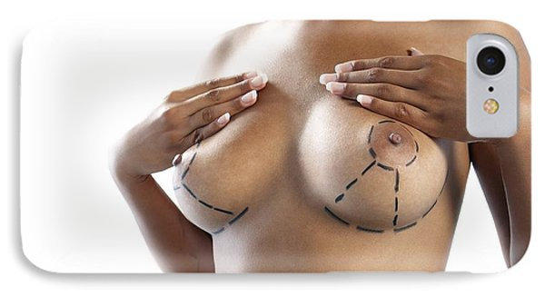 Cosmetic Breast Surgery Phone Case by Adam Gault