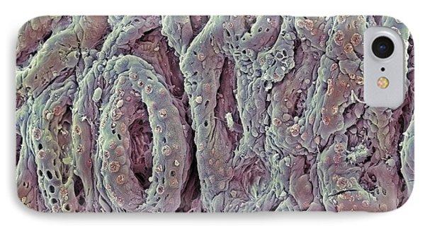 Ulcerative Colitis, Sem Phone Case by Steve Gschmeissner