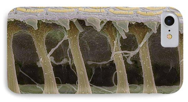 Inner Ear Hair Cells, Sem Phone Case by Steve Gschmeissner
