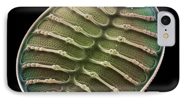 Diatom Alga, Sem Phone Case by Steve Gschmeissner