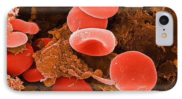 Red Blood Cells, Sem Phone Case by Science Source