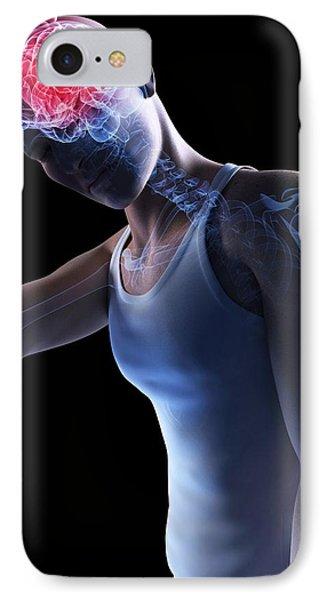 Headache, Conceptual Artwork Phone Case by Sciepro