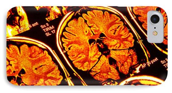 Brain Scans, Mri Scans Phone Case by Pasieka