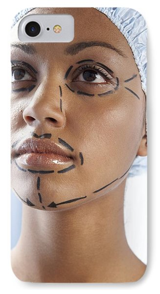 Facelift Surgery Markings IPhone Case