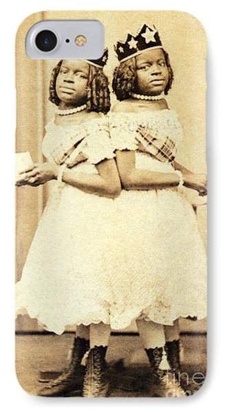 2 Headed Girl Millie-chrissie Phone Case by Photo Researchers