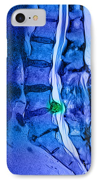Herniated Disc Phone Case by Medical Body Scans