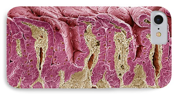 Intestinal Lining, Sem Phone Case by Steve Gschmeissner