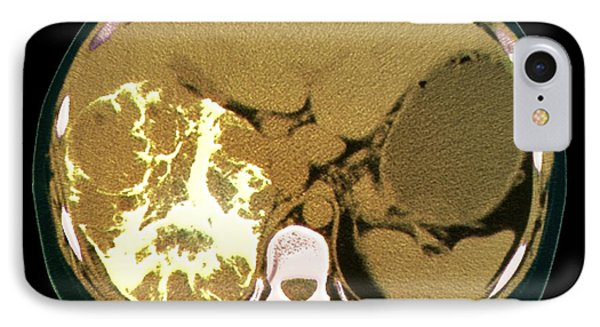 Liver Cancer, Ct Scan Phone Case by Zephyr
