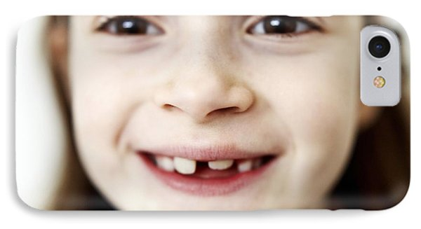 Loss Of Milk Teeth Phone Case by Ian Boddy