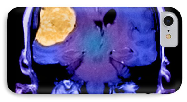 Right Sided Meningioma IPhone Case by Medical Body Scans