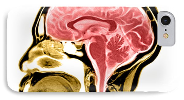 Sagittal View Of An Mri Of The Brain Phone Case by Medical Body Scans