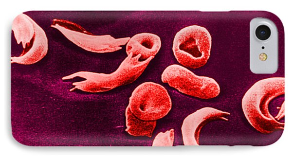 Sickle-cell Anemia, Sem Phone Case by Omikron