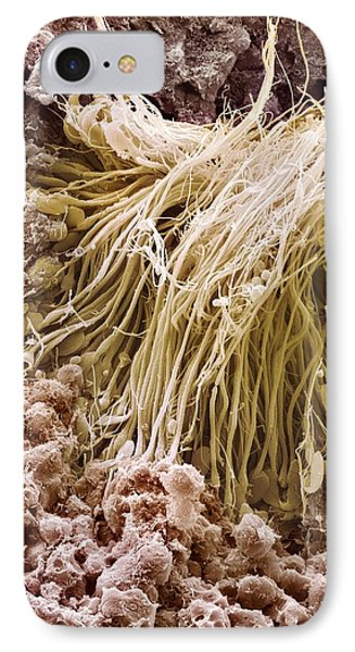 Sperm Production Site, Sem Phone Case by Steve Gschmeissner