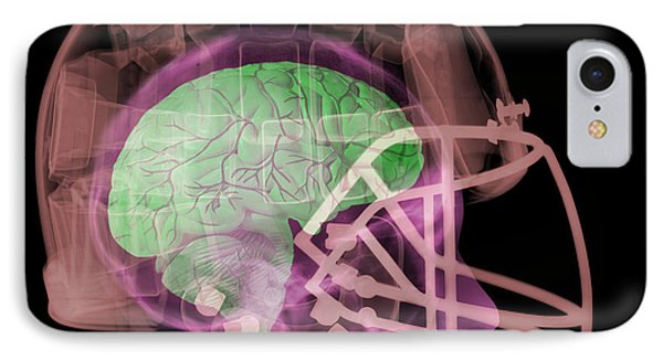 X-ray Of Head In Football Helmet Phone Case by Ted Kinsman