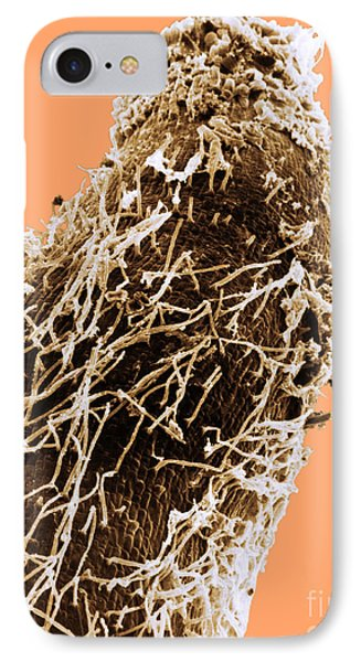 Bacteria On Sorghum Root Tip Phone Case by Science Source