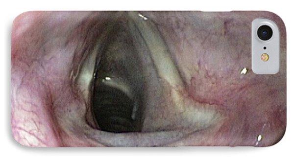 Healthy Larynx IPhone Case