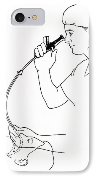 Illustration Of Endoscopy IPhone Case by Science Source