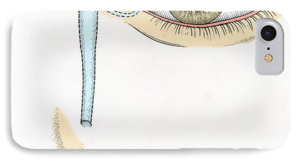 Illustration Of Tear Duct Phone Case by Science Source