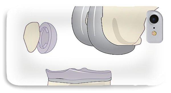 Knee Replacement, Artwork Phone Case by Peter Gardiner